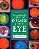 Perkins and Hansell's Atlas of Diseases of the Eye, Perkins, Edward and O'Neill, Damian, 0750640634