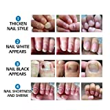 Toenail Fungus Treatment Cream, Nail Fungus