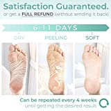 Peach Foot Peel Mask - 2 Pack - For Cracked