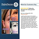 HaloDerm Skin Tag Remover & Skin Growth Remover