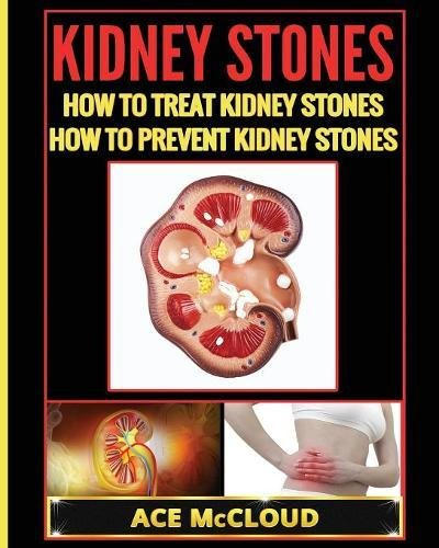 Treat Kidney Stones (Kidney Stones: How To Treat Kidney Stones: How To Prevent Kidney Stones)