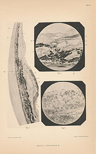 Cellular makeup of eye muscle 1880 framable antique Ophthalmology eye print