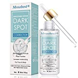 Brighten Serum, Freckle Remover, Dark Spot Corrector, Natural Gentle Skin Lightening Serum, Effective for Melasma/Freckles/Age Spots, Use for Face&Body
