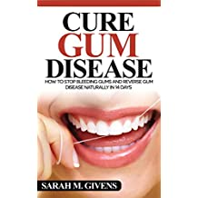 Gum Disease Cure (Gum Disease Cure, Periodontal Disease, Gum Disease, Gum Infection, Gingivitis treatment, Tooth Decay)