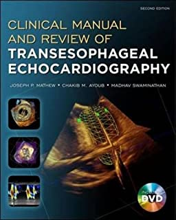 Kaplans cardiac anesthesia the echo era expert consult premium clinical manual and review of transesophageal echocardiography second edition fandeluxe Image collections