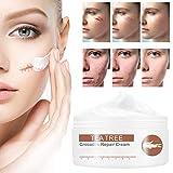 Scar Cream,Scar Removal Cream Gel,Scar