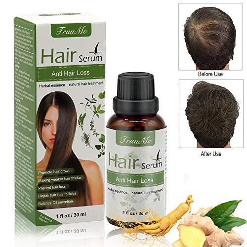 Hair treatment, Hair growth serum, Hair serum,  Natural Herbal Essence Anti Hair Loss Hair Serum , For Longer, Thick,Stronger Hair. Hair serum For Men & Women (30ml)