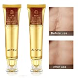 2 pack Aliver TCM Scar and Acne Mark Removal Gel Cream Ointment