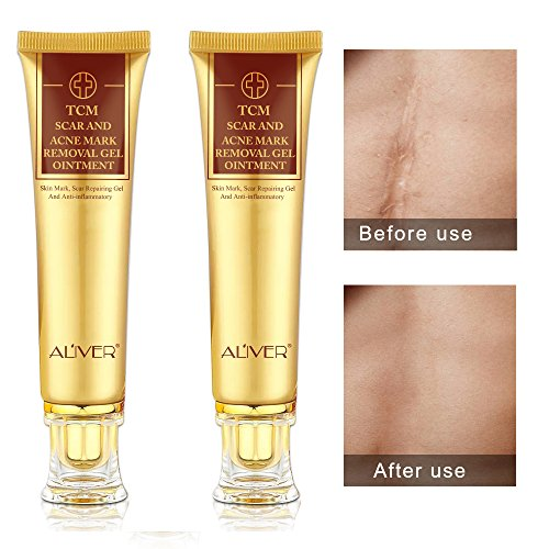 2 pack Aliver TCM Scar and Acne Mark Removal Gel Cream Ointment, Anti-inflammatory and Rapairing,Acne Scar Removal Cream Skin Repair Acne Spots Treatment Blackhead Whitening Cream Stretch -