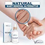 Vanish Wart Remover Liquid, Maximum
