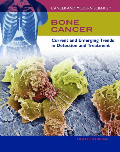 Download Bone Cancer: Current and Emerging Trends in Detection and Treatment (Cancer and Modern Science) pdf epub