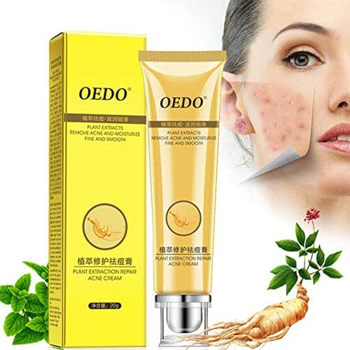 YTGOOD Acne Spot Treatment,Plant Extraction Repair Acne Cream Ginseng Scutellariae Extract Ance Treatment Whitening Skin Care Cream