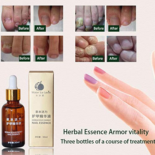 - Nail Treatment Essence Nail Toenail and Foot Whitening Toe Nail Fungus Removal Herbaceous Energy Repair Recovery Toenail Fungal Liquid Nail Essence Cure Care
