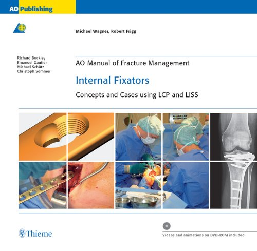 AO Manual of Fracture Management: Internal Fixators: Concepts and Cases using LCP/LISS (AO Manual of Fracture Management Series) Pdf