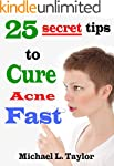 Acne: 25 Secret Tips to Cure Acne Fast