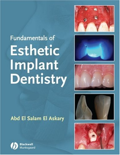 Fundamentals of Esthetic Dentistry, Second Edition by Wiley-Blackwell