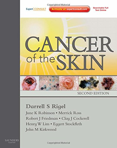 Cancer of the Skin: Expert Consult - Online and Print