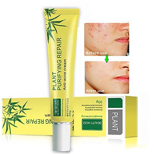Epiduo Face Cream - 3