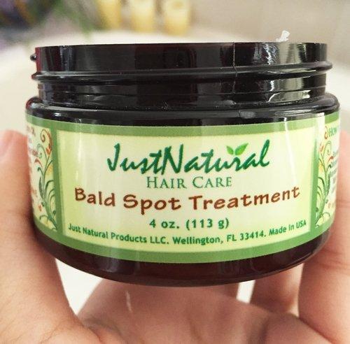 Natural Treatment For Black Spots
