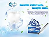 #7: Flashy Bright Beautiful Smile (14 Days) Teeth Express Professional Quality 28 Whitening Strips (6% Hydrogen Peroxide) + 1 Whitening Pen Kit (44% Carbamide Peroxide) + 100% Money-Back GUARANTEE