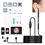 Ear Cleaning Otoscope - Akimo 3 in 1 USB Ear Wax