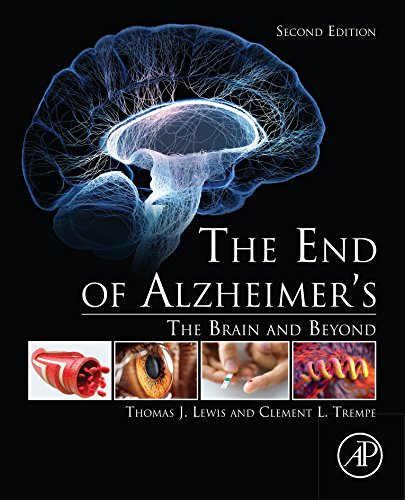 (The End of Alzheimer's: The Brain and Beyond)