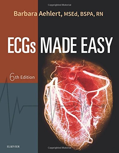 ECGs Made Easy - http://medicalbooks.filipinodoctors.org