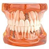Dental Standard Teaching Teeth Model Removable Typodont Demonstration Dental Disease Study, Orange