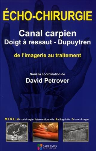 Echo-chirurgie canal carpien, doigt  ressaut - Dupuytren : De l'imagerie au traitement