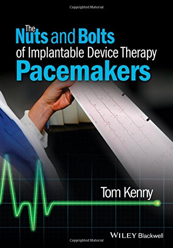 The Nuts and Bolts of Implantable Device Therapy: Pacemakers