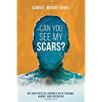 Can You See My Scars?