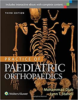 Practice of Paediatric Orthopaedics