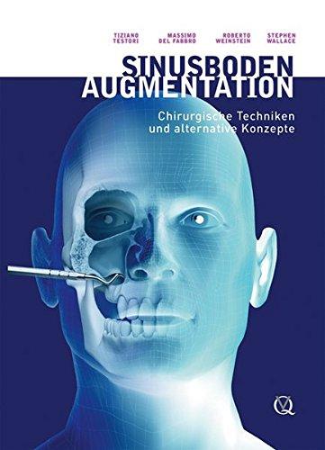 Sinusbodenaugmentation: Chirurgische Techniken und alternative Konzepte