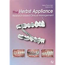 Herbst Appliance: Research-Based Clinical Management