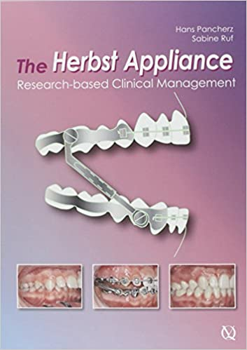 The Herbst Appliance: Research-based Clinical Management ...