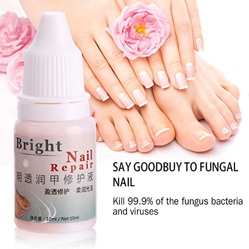Fungal Nail Treatment Gel Whitening Toe Care Essence Fungus Removal Liquid 1PC 10ml by Zerone (Image #2)