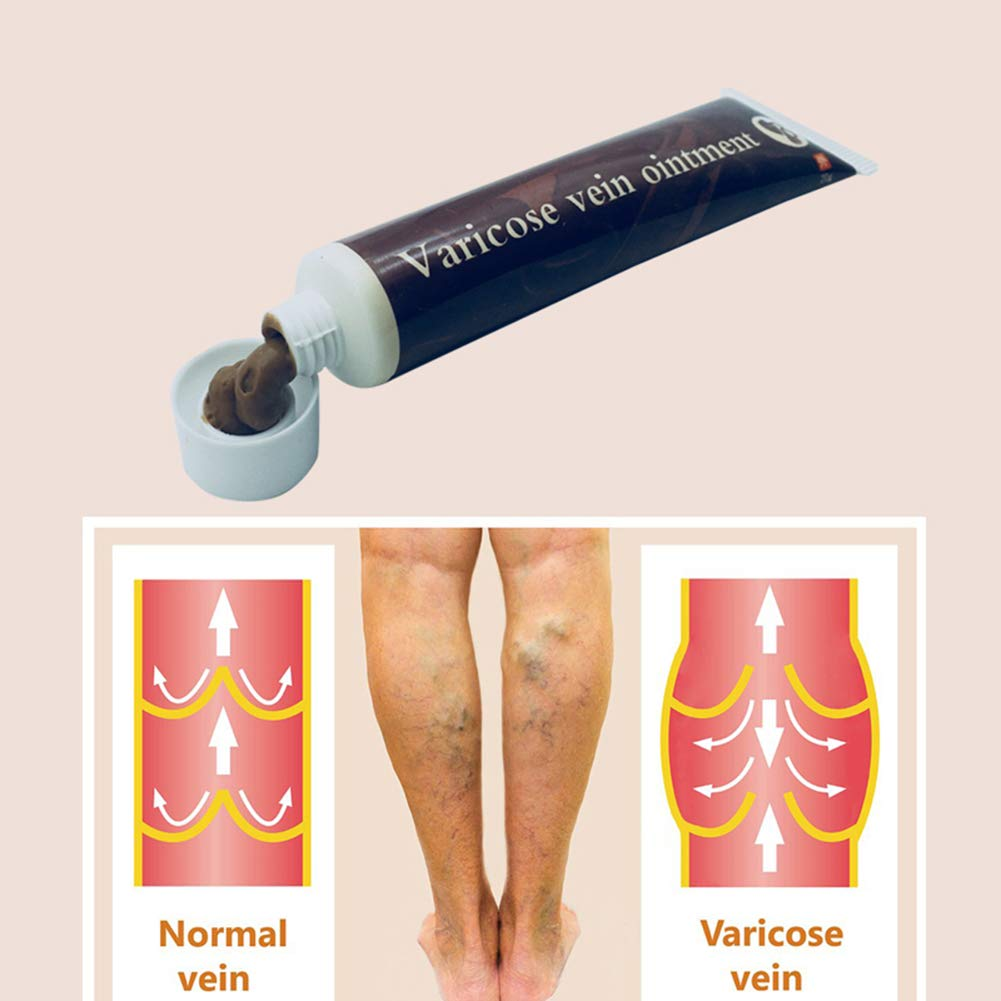 disclaimer și varicosezi