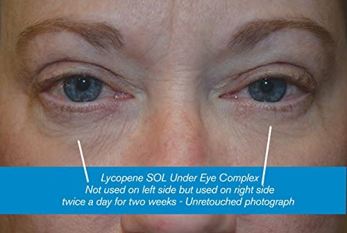Lycopene Skin Care – Under Eye Complex - With Miracle Haloxyl for Treating Dark Circles & Puffy Eyes Naturally