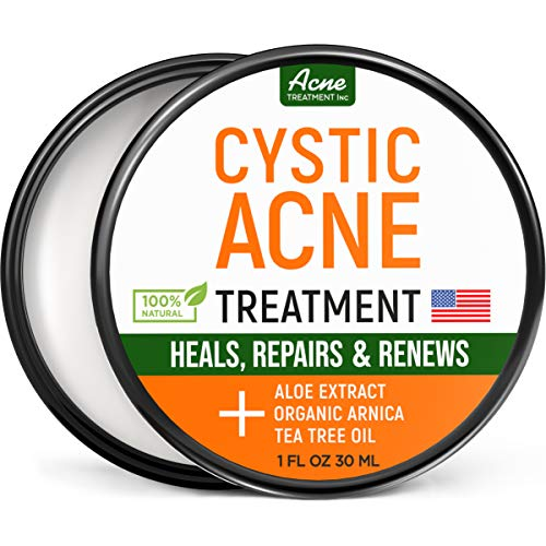 Cystic Acne Treatment and