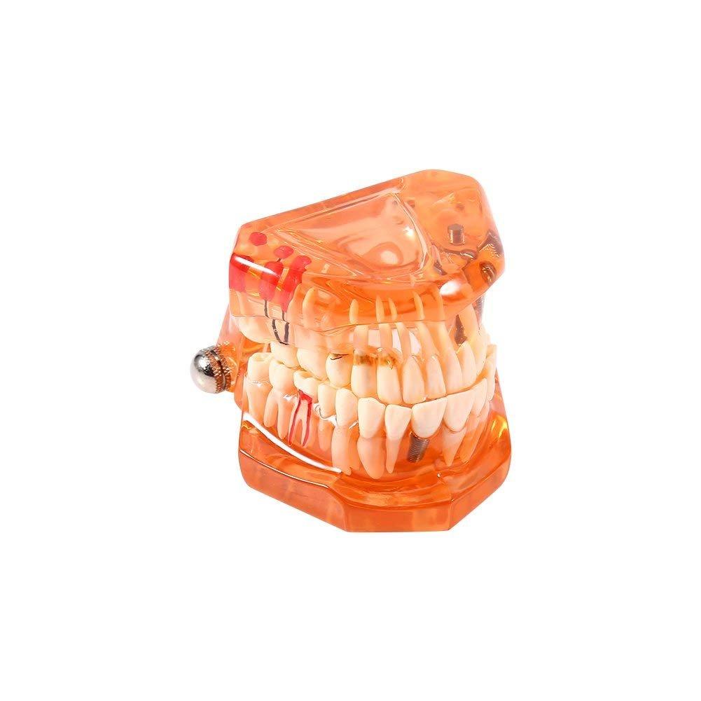 Adulti Denti Replica Modello Medico Rimovibile Dentale Strumenti Di Insegnamento Realistico, Arancione Yosoo