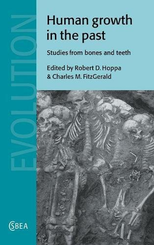 Human Growth in the Past: Studies from Bones and Teeth (Cambridge Studies in Biological and Evolutionary Anthropology)