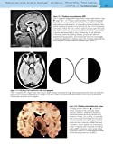 Robbins and Cotran Atlas of Pathology