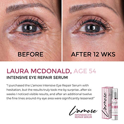 51c fTENc7L - Intensive Eye Serum for Dark Circles, Puffiness & Bags Under Eyes with Collagen & Retinol - Anti Aging & Anti Wrinkle Under Eye Gel