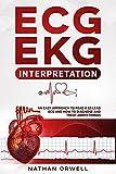 ECG/EKG Interpretation: An Easy Approach to Read a