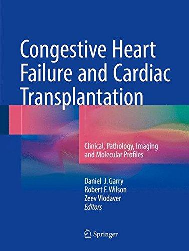 Congestive Heart Failure and Cardiac Transplantation: Clinical, Pathology, Imaging and Molecular Profiles