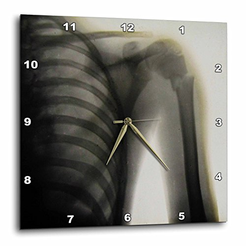 Rose Clock Parts - 3D Rose Vintage Xray of a Human Shoulder Magic Lantern Slide Medical 1890 Wall Clock, 10