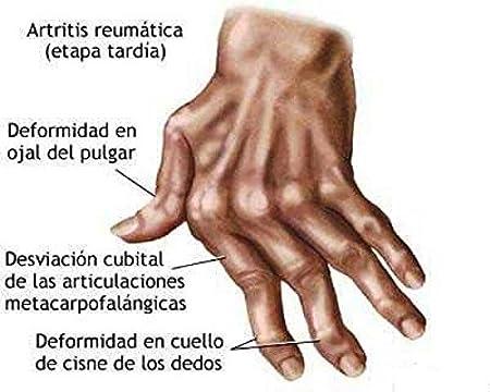 Cloruro De Magnesio (2)