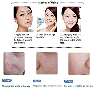 28days Face Skin Whitening Cream Skin Lightening Anti-Sunburn Anti-Aging Cream Effective Face Moisturizers for Whitening Skin ,Clean Face Dark Spots,Remove Freckle Spot