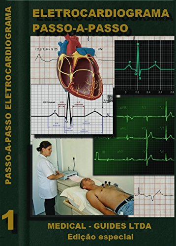 Guia Eletrocardiograma Passo passo MedBook ebook