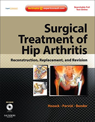 Surgical Treatment of Hip Arthritis: Reconstruction, Replacement, and Revision: Expert Consult: Expert Consult - Online and Print with DVD ()